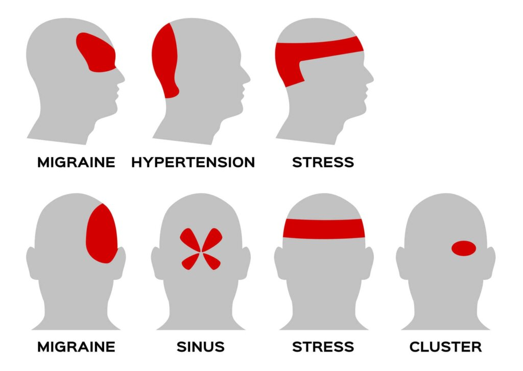 Tipi glavobolov glede na lokacijo
